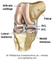 ACL Reconstruction Hamstring tendon ACL Reconstruction Patellar tendon